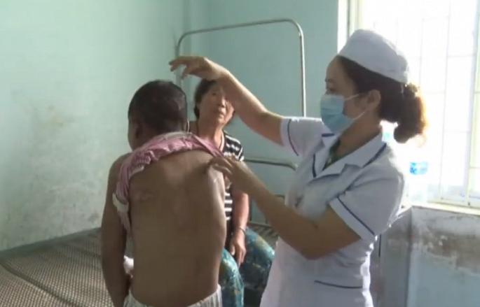 Người làm thuê bị chủ tra tấn dã man ở Gia Lai: Công an triệu tập 5 người liên quan