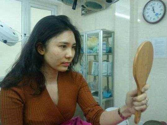 Phu nhan phau thuat tham my, Thanh Bi 'Nguoi phan xu' bi tung anh 'dap mat xay lai' hinh anh 8
