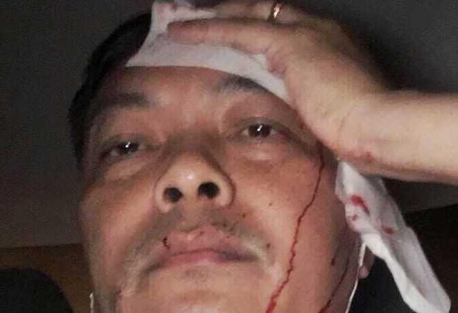 Giam doc nhan su ca phe Trung Nguyen ke phut bi danh xoi xa hinh anh 3