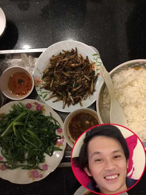 Ly do khien Hoai Linh phai nhap vien cap cuu hinh anh 3