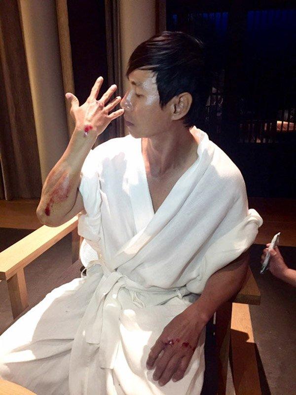 Truong Ngoc Anh, Ly Hai chan thuong nghiem trong tren phim truong hinh anh 2