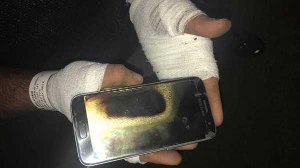 Dien thoai Galaxy S7 nỏ tung tren tay nguòi dùng gay bong nạng hinh anh 1