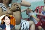 Bảo mẫu bóp đầu, tát trẻ dã man ở Đà Nẵng: Quan chức Quốc hội lên tiếng