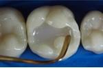 Tròn mắt xem quá trình hàn một chiếc răng sâu