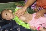 Rơi nước mắt thương bé 3 tuổi gầy trơ xương