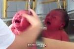 Phản cảm clip tắm trẻ sơ sinh trong bồn rửa inox