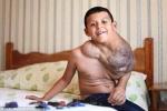 Ca phẫu thuật kỳ diệu cứu cậu bé có khối u bằng quả bóng