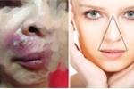 Bằng chứng vùng 'tam giác tử thần' trên mặt là có thật