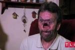 Người đàn ông 'thủng mặt' vì ung thư