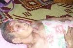 Khởi tố kẻ bất hiếu đổ nước sôi lên mẹ ruột 83 tuổi