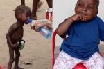 Thân hình mập mạp khó tin của cậu bé sắp chết đói cách đây 2 tháng