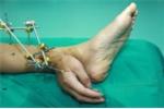 Ảnh trong ngày: Rùng mình nhìn tay 'mọc' ở gót chân