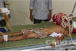 Hai anh em ruột bị dượng dùng gậy tre đánh thương vong