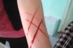Nữ sinh bị cô giáo 'rạch tay' giữa lớp