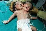 Video: Em bé chào đời với 2 đầu, 1 thân