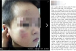 Dàn cảnh bắt cóc trẻ em giữa ban ngày ở Hà Nội?