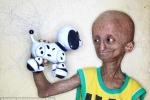 Cậu bé 15 tuổi 'mắc kẹt' trong hình hài ông cụ 90