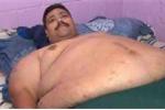 Cắt dạ dày giảm cân cho người béo nhất thế giới