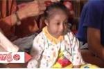 Thiếu nữ Vĩnh Long 15 tuổi nặng 8,2kg