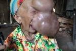 Người đàn bà có 'khuôn mặt quỷ' ở Cao Bằng được phẫu thuật thành công