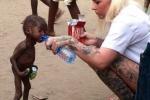 Bức ảnh em bé da đen bị bỏ đói được cứu giúp lay động cả thế giới