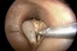 Kinh hãi hình ảnh dế 7,5 cm chui vào tai