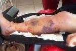 Giám đốc bệnh viện thừa nhận kíp trực thiếu chuyên môn, nữ sinh phải cưa chân