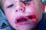 Đau lòng bé trai bị chó cắn nát mặt