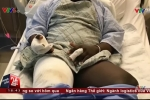 Thuốc lá điện tử phát nổ trong túi quần, người đàn ông bỏng nặng