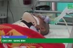 Đuổi theo cướp, người đàn ông bị đạp ngã chấn thương sọ não