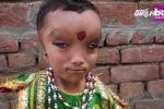 Cậu bé có diện mạo quái dị được tôn làm thánh thần ở Ấn Độ