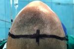 7 giờ căng thẳng phẫu thuật cho bé trai 20 tháng có đầu biến dạng thành hình tam giác
