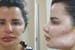 Bác sĩ thẩm mỹ khiến hàng chục bệnh nhân biến dạng mặt, không thể phục hồi