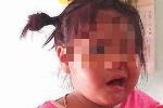 Nghi vấn cô giáo mầm non đánh bé 3 tuổi liệt dây thần kinh, méo mồm