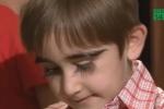 Kỳ lạ cậu bé có hàng lông mi cong vút dài 4,3 cm