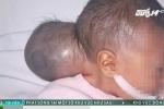 Xót xa bé sơ sinh 2 ngày tuổi có bướu khổng lồ bị người nhà bỏ rơi ở bệnh viện