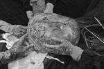Bà lão 78 tuổi 'nuôi' khối u khổng lồ 30 kg trong nhiều năm
