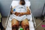 Điều tra vụ tạt axit, hủy hoại thân thể rúng động Quảng Ngãi