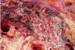 Bệnh viện Chợ Rẫy bị tố: Những hình ảnh đáng sợ khi tụy tự tiết ra enzyme 'ăn' chính mình