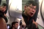 Yêu cầu an ninh đánh hành khách ngất xỉu, lãnh đạo United Airlines vẫn tuyên dương nhân viên