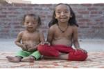 Bệnh lạ: Hai đứa trẻ da nhăn nheo như người già