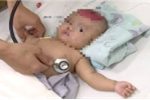 Bé gái hai tháng tuổi bị chấn thương sọ não do điện thoại rơi trúng đầu