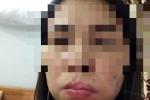 Hà Nội: Làm má lúm đồng tiền, mặt méo xệch đáng sợ