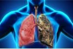 Những dấu hiệu cơ thể 'tố cáo' bệnh ung thư phổi