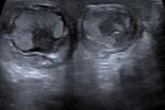 Cậu bé bị xoắn cả hai tinh hoàn trong bụng mẹ