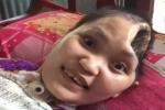 Tận cùng nỗi đau của cô gái mất nửa não, nằm liệt sau tai nạn