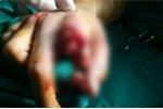 Nối liền ngón tay bị máy xay thịt cắt đứt lìa