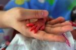 Bệnh viện Nhi đồng 2 nuôi thành công trẻ sơ sinh cân nặng chỉ 500 gram