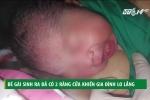 Kỳ lạ bé gái vừa sinh ra đã có 2 răng cửa ở TP.HCM