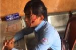 Bị chó cắn khi đi lấy số nước, nam nhân viên còn bị đánh vỡ đầu